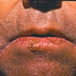 סרטן העור - קרציומה של תאי הקשקש
