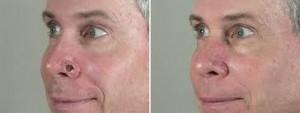 ניתוחי מוז - לפני ואחרי